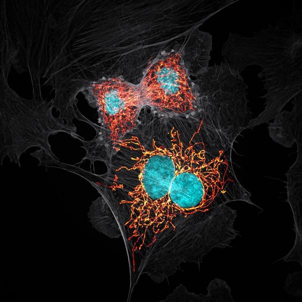 Деление клеток легочной артерии