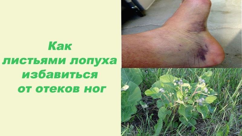Как листьями лопуха избавиться от отеков ног