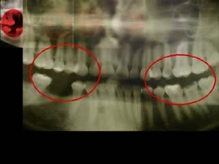 Tаблетки для индикации зубного налета