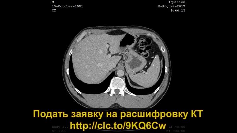 Расшифровка КТ органов брюшной полости с контрастированием с кальцинатами в печени и селезенке