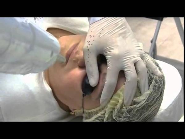 Удаление татуажа бровей, аппарата Nautilus Laser Tattoo Removal