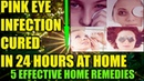 How To Cure Pink Eye Infection At Home In 24 Hours: Home Remedies For Conjunctivitis Eyes Infection