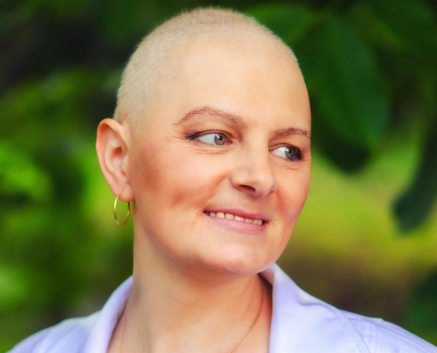 Химиотерапия может вызвать выпадение волос у некоторых пациентов.