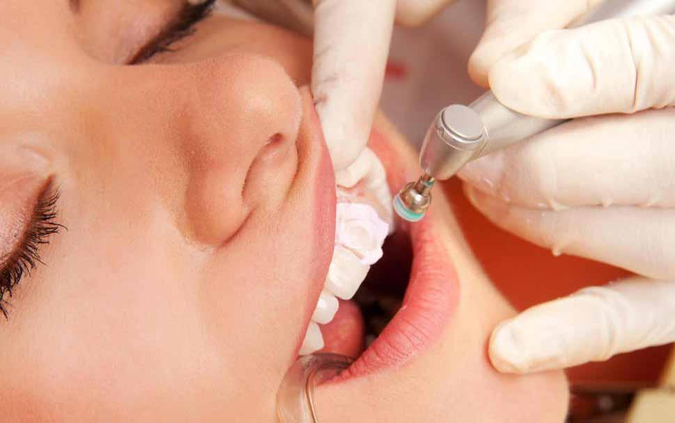 Удаление зуба рекомендуется при периапикальной кисте.