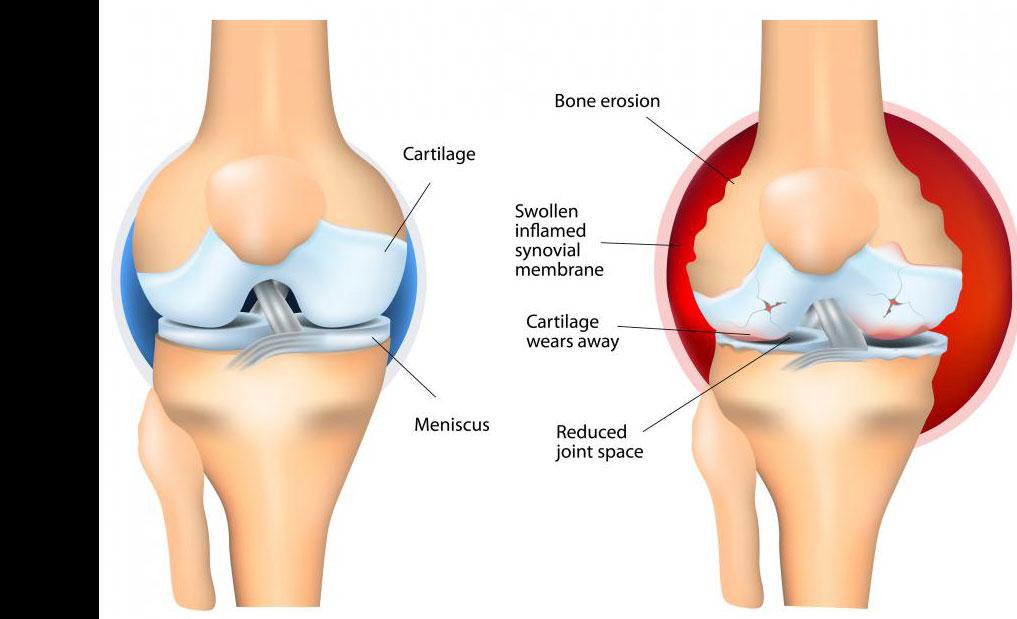 Готу кола в виде мази можно использовать для уменьшения боли в суставах, вызванной ревматоидным артритом