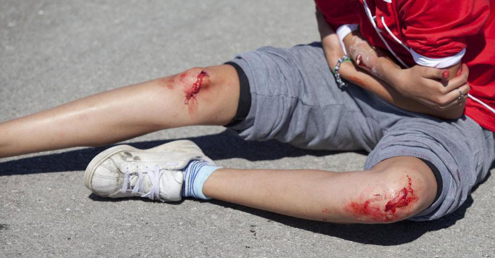 Мазь Готу-кола может быть использована на ранах, чтобы они быстрее заживали и снижали вероятность образования рубцов.