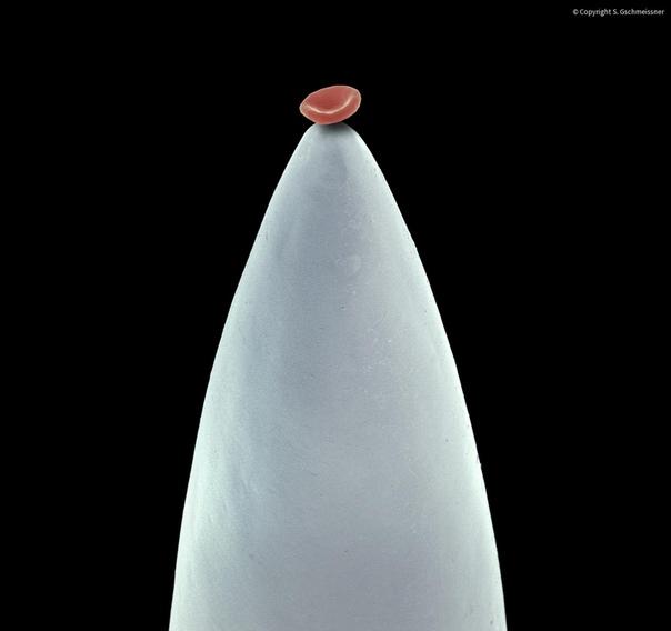 Эритроцит на кончике иглы