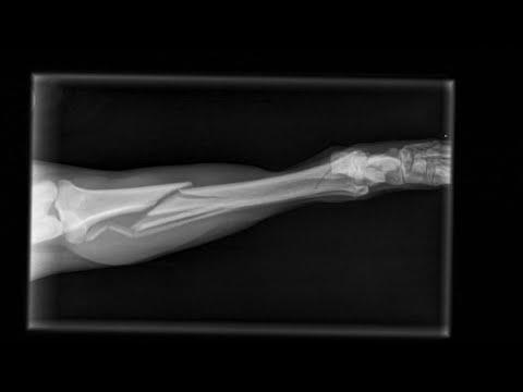 Лечение перелома большеберцовой кости у собаки с помощью пластины Live stream - tibial fracture repair in a dog with a plate