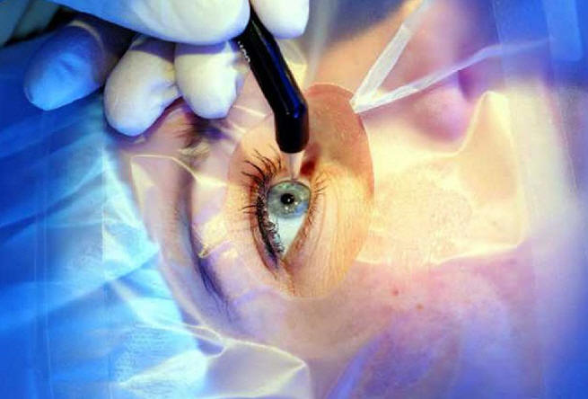 Микрохирургия глаза: виды и показания