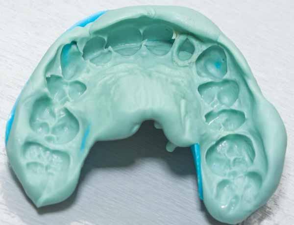 Стоматологическое впечатление создается для создания зубных протезов