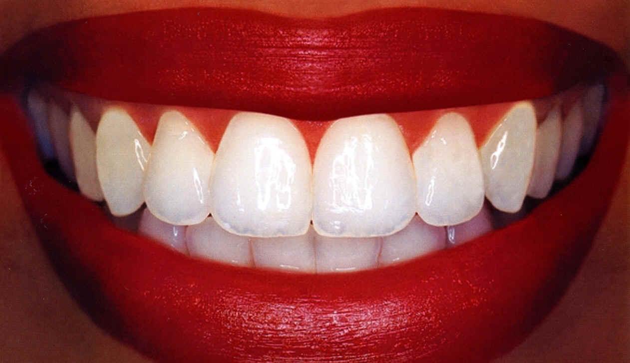 Основы гигиены полости рта