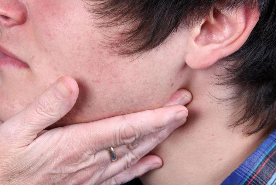 Симптомы рака носоглотки включают опухшие лимфатические узлы.