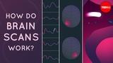 How do brain scans work - John Borghi and Elizabeth Waters