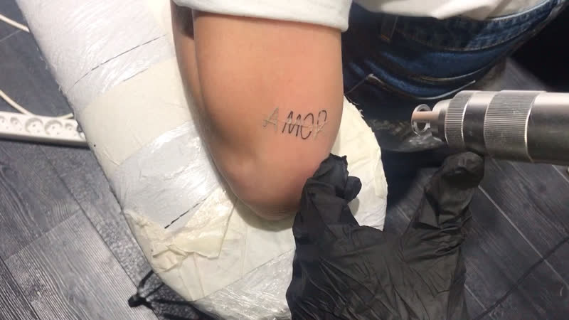 Laser tattoo removal by Vladlena Sid