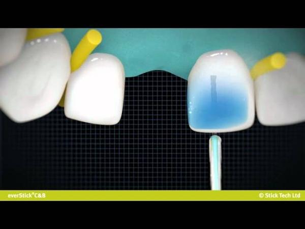 La solution instantanée pour remplacer les dents absentes -- everStickCB .wmv