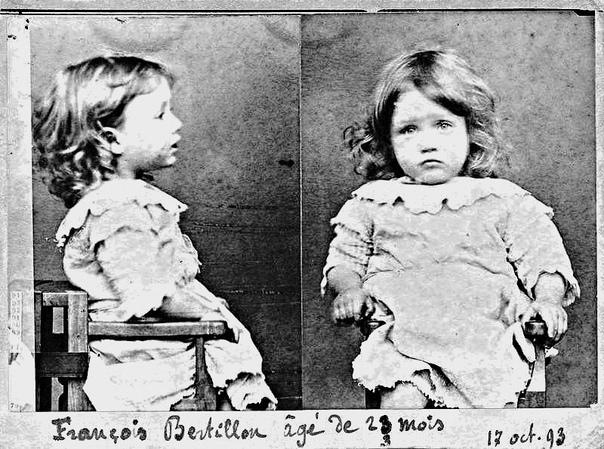 Полицейский снимок двухлетнего Франсуа Бертильона, самого юного злоумышленника, который был задержан по обвинению в чревоугодии, а именно за то, что надкусил все груши из корзины.