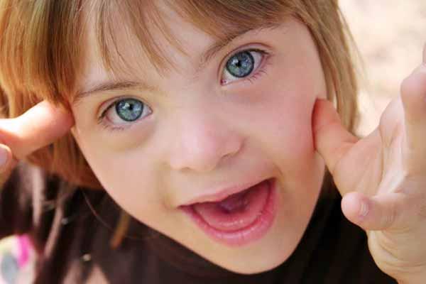 Чуть больше девочек, чем мальчиков, рождаются с синдромом кошачьего крика.