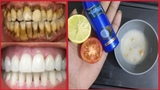 Magical teeth whitening remedy Teeth whitening at home