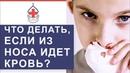 👃 Носовые кровотечения: причины, первая помощь, лечение. Носовые кровотечения причины. 12