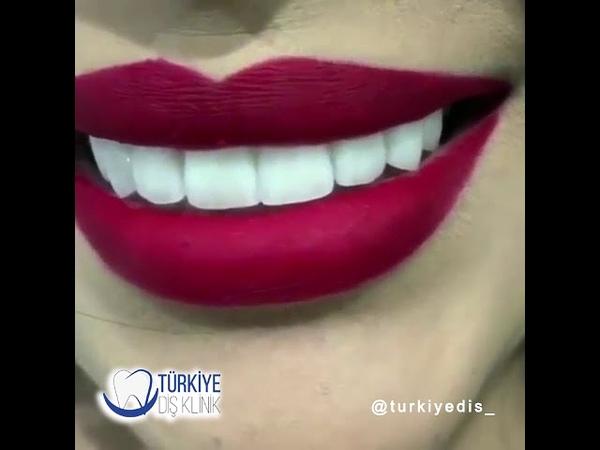Zirkonyum Diş sonrası estetik gülüş