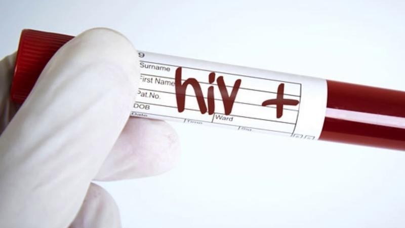 What is HIV seroconversion