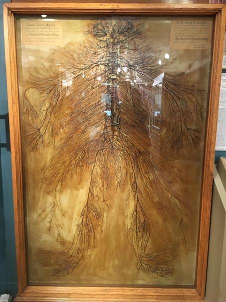 В 1925 году два студента-медика создали этот уникальный экспонат