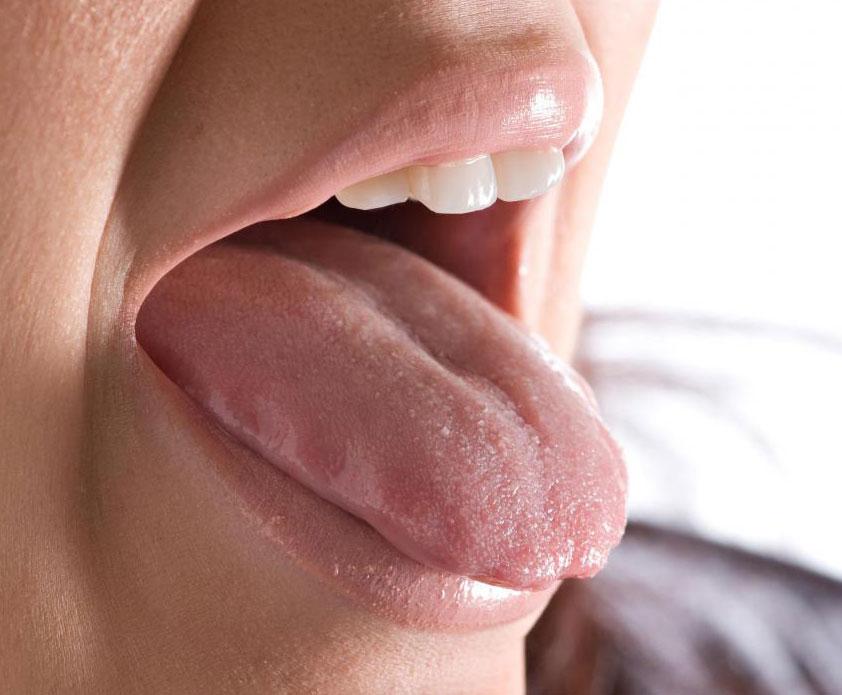 Какова выживаемость при раке языка?