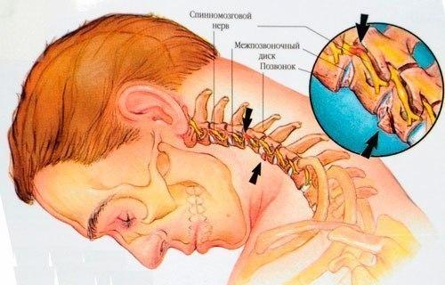 Если у вас болит шея. Лучшее средство от боли - тепло, легкий массаж, облегченные физические упражнения и профилактика - индивидуальные упражнения для шеи 1-5 мин. в день, стоя или сидя. 1.