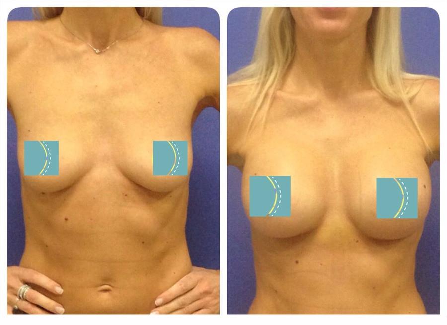 Маммопластика до и после