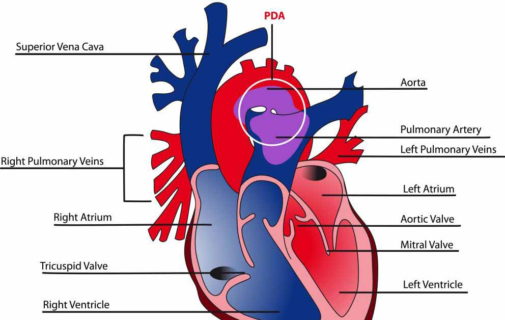 Ишемическая болезнь сердца характеризуется снижением кровоснабжения и кислорода к сердцу.
