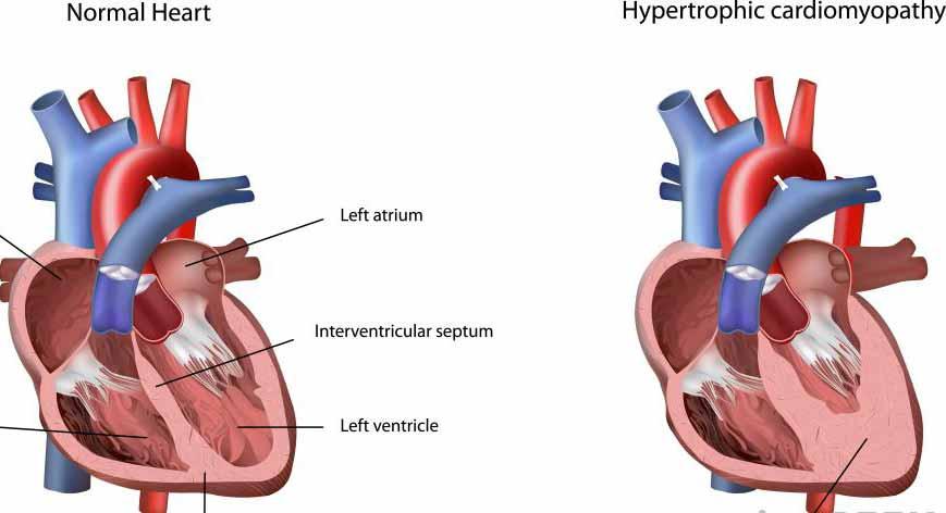 Гипертрофическая кардиомиопатия может возникнуть, когда сердечная мышца становится толстой.