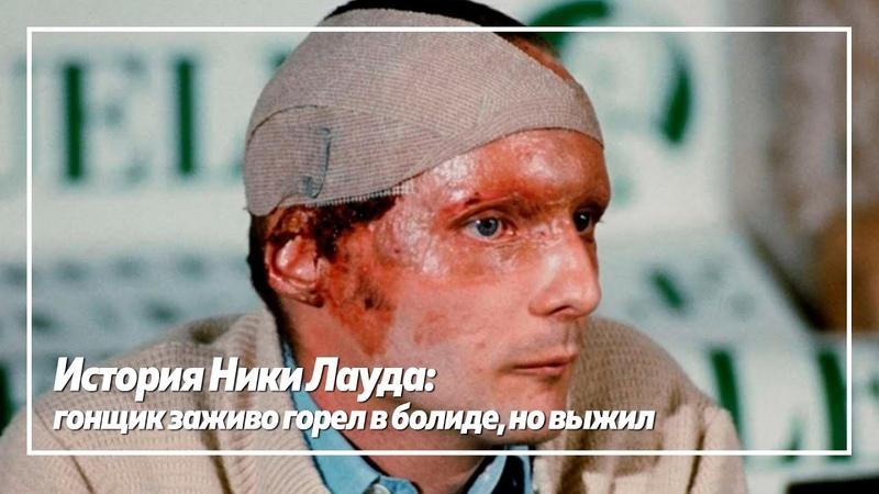 История Ники Лауда гонщик заживо горел в болиде но выжил