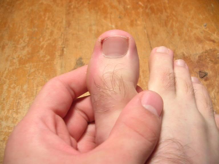 Боль и воспаление большого пальца являются симптомами подагры большого пальца.
