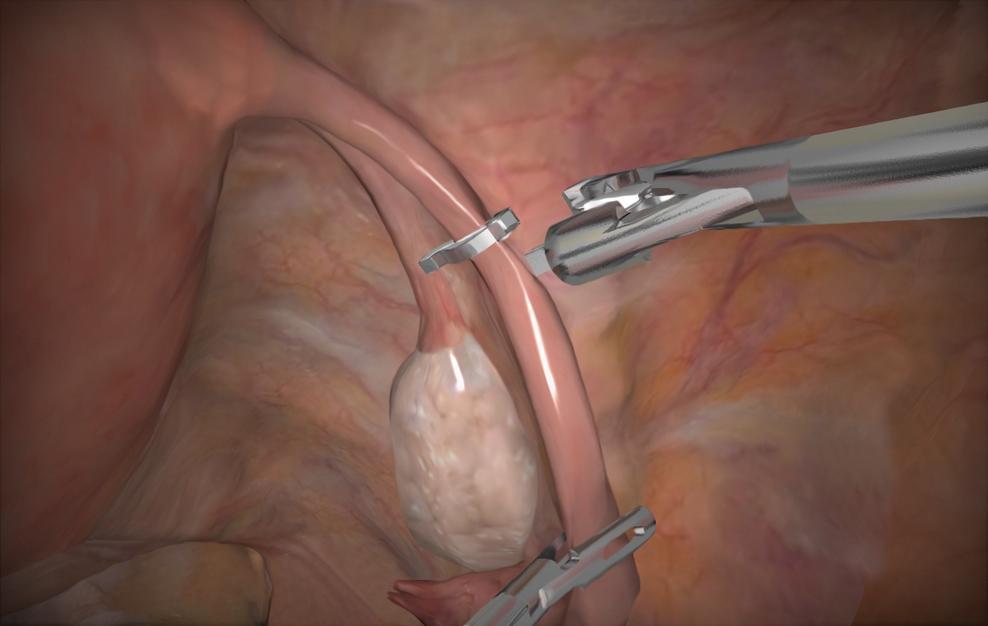 Возможна аннулирование перевязки маточных труб, если женщина решит, что хочет забеременеть.