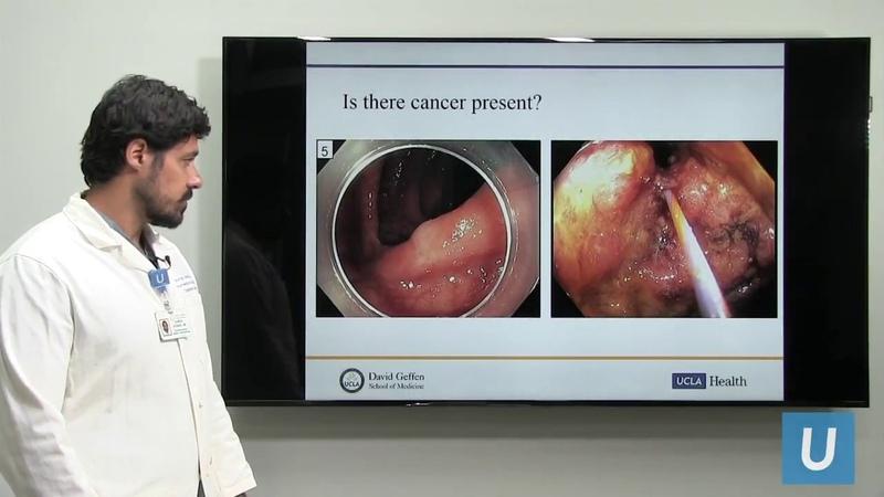 Treatment Options for Colon Polyps | UCLA Digestive Diseases