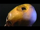A Hole in the Head | Shocking Documentary - The Best Documentary Ever