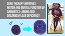 Gene therapy improves motor and mental function of aromatic l amino acid decarboxylase deficiency