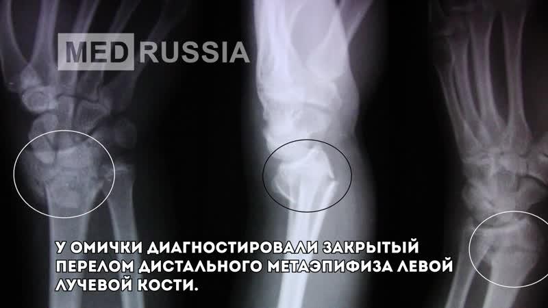 Омичка требует 190 тысяч рублей с медсестры, случайно сбившей её с ног в больнице