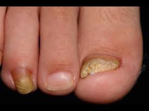 ГРИБОК НОГТЕЙ простые и дешёвые способы избавиться от грибка на ногтях и коже