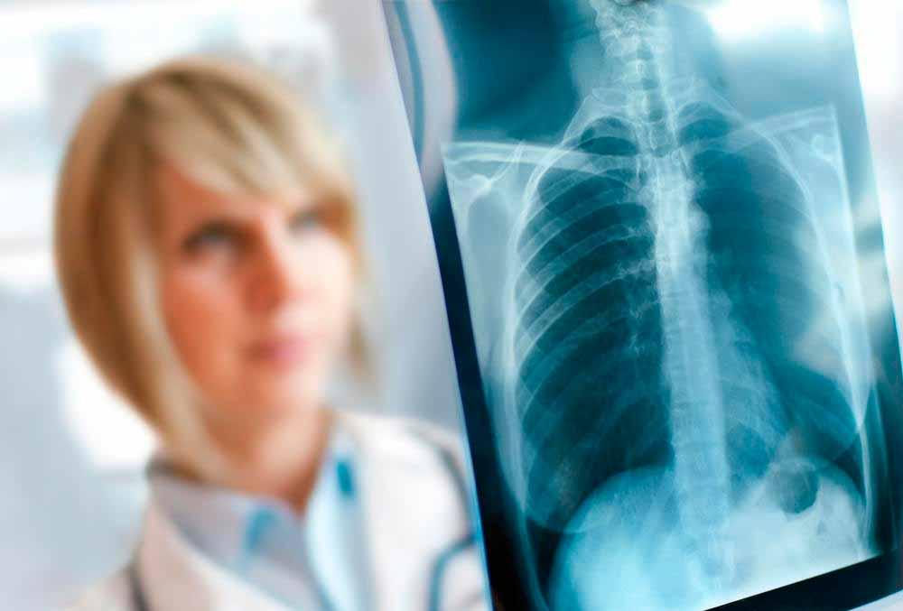 Некоторые формы рака легких труднее лечить, чем другие.