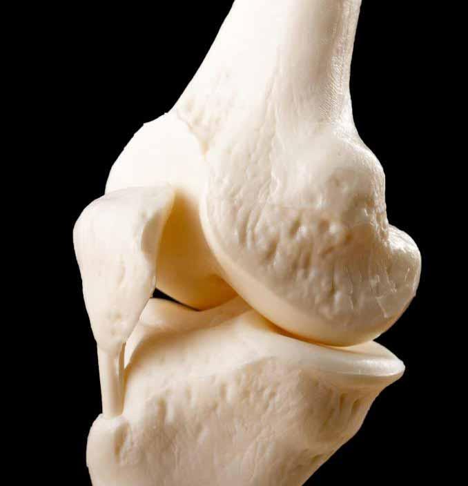 Коленный сустав и кости, из которых он состоит, являются частью костно-мышечной системы.