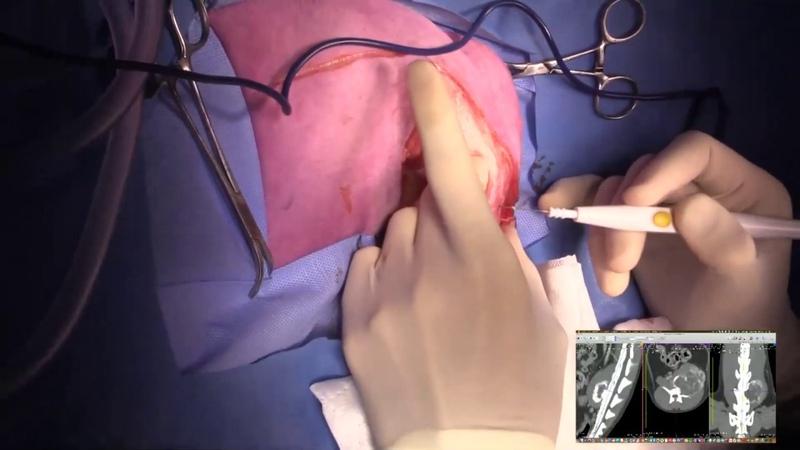 Корпэктомия на уровне L6 и удаление тазовой конечности / Live stream L6 spinal corpectomy and hindlimb amputation