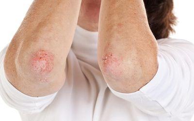 Псориаз - это длительное аутоиммунное заболевание, характеризующееся пятнами аномальной кожи.