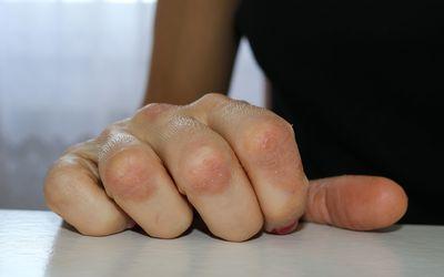 Псориаз является хроническим аутоиммунным заболеванием, которое вызывает быстрое накопление клеток кожи.