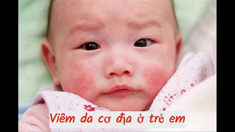 Chữa viêm da cơ địa đảm bảo an toàn ở trẻ em