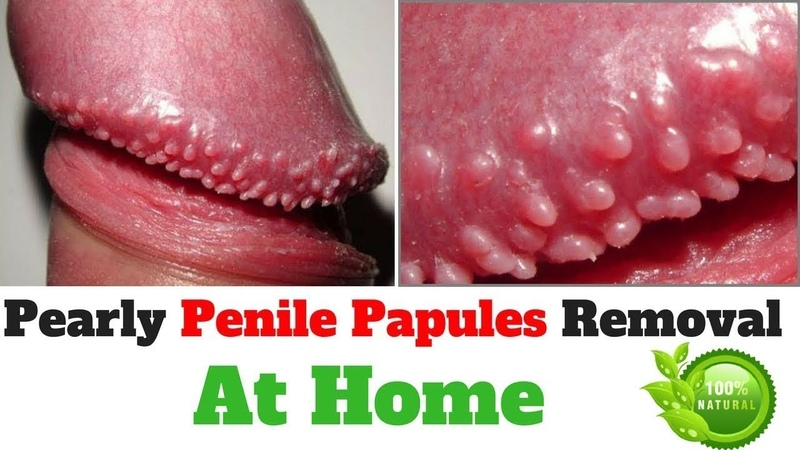 Pearly Penile Papules Removal PDF, REAL CUSTOMER Reviews SCAM or legit