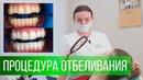 Отбеливание зубов в клинике СтомАвеню Грек Виктория Славовна