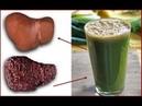 ★ Очистить печень и убрать жир на животе поможет этот чудесный напиток Записывай рецепт