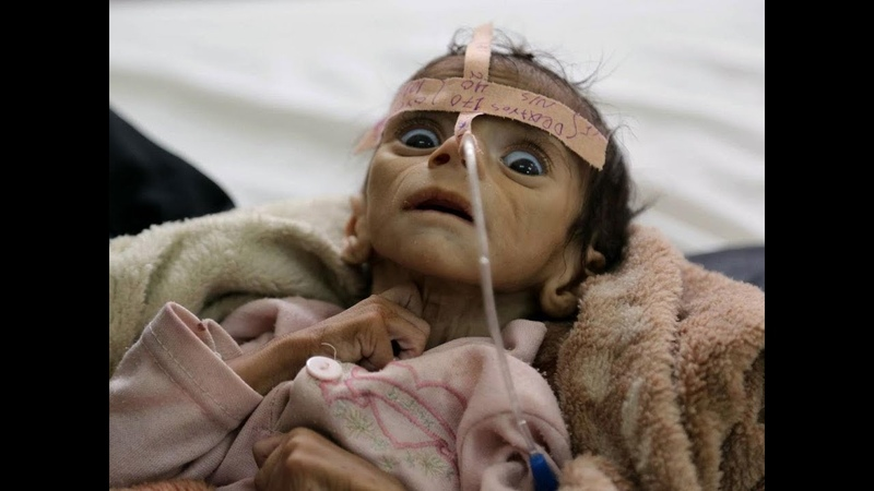 Yemen Death Toll To Surpass 230,000 By End Of 2019 - One Child Dies Every 12 Minutes UN report