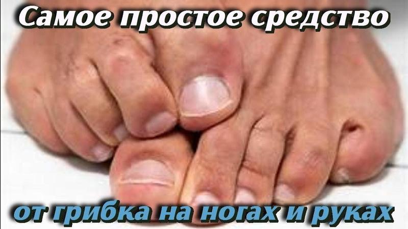 ЧУДО СРЕДСТВО от которого ИСЧЕЗАЕТ ГРИБОК на ногах и руках Самые полезные РЕЦЕПТЫ для ЗДОРОВЬЯ